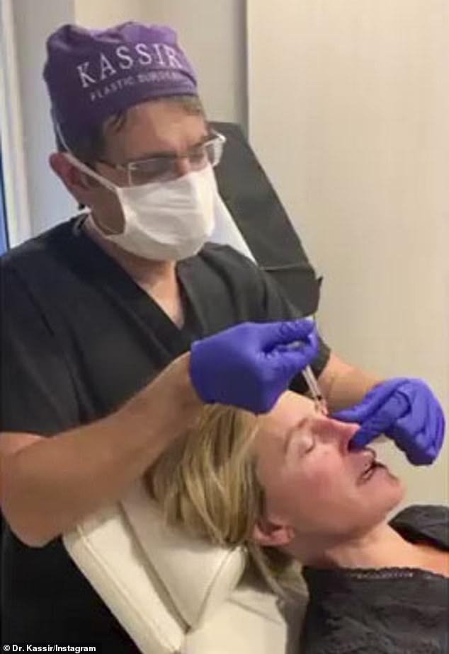 Sonja Morgan's surgeon reveals she's had a liquid nose job 4