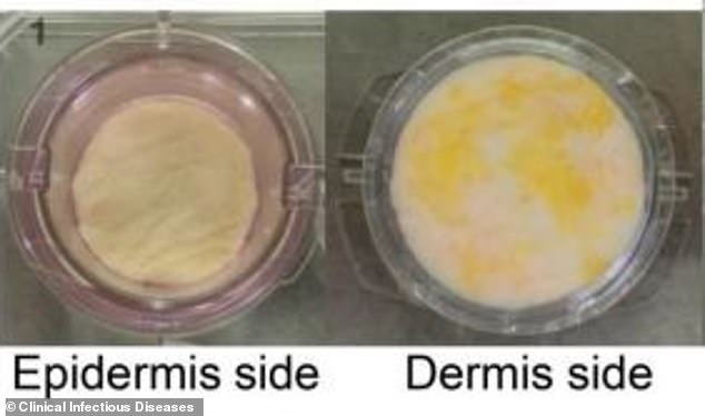 Coronavirus can survive for up to NINE HOURS on human skin, study finds 6