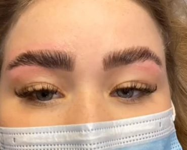 Woman urges others NOT to have beauty treatments without taking a patch test 6